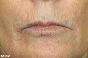 Lip Augmentation Implant