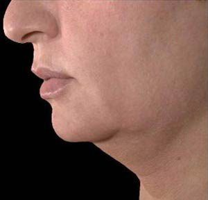Ultherapy (Ultrasound Face-lift)